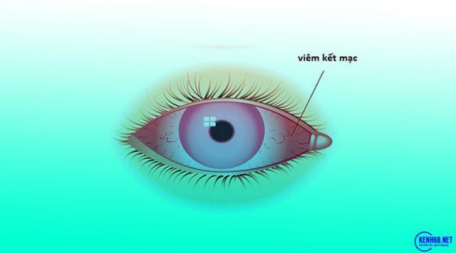 triệu chứng đau mắt đỏ