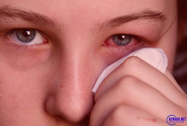 triệu chứng đau mắt đỏ là gì