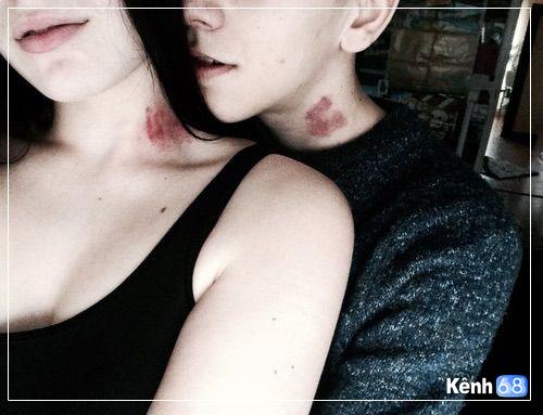 hình ảnh hôn Hickey 001